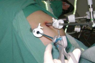 ¿La laparoscopia es igual que la cirugía láser?