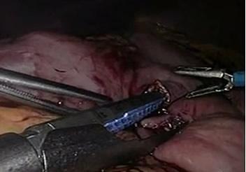 Derivación Gástrica por Tumor Obstructivo